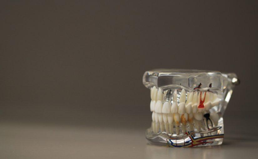 Zła metoda żywienia się to większe braki w ustach natomiast dodatkowo ich brak